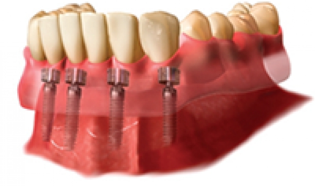 Stabilize Your Dentures Using Dental Implants